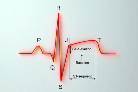 ECG in myocardial infarction. 3D illustration showing ST elevation, labeled image
