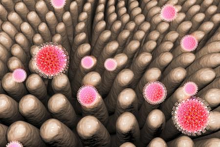 Rotaviruses. infecting intestine. 3D illustration showing intestinal villi and multiple viruses Stock Photo