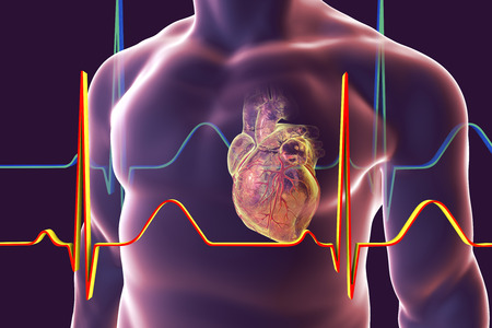 myocardial infarction: Human heart with heart vessles inside human body and ECG, 3D illustration Stock Photo