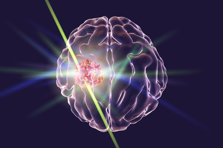 nodule: Destruction of brain tumor by laser, 3D illustration. Conceptual image for brain cancer treatment Stock Photo