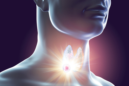 Destruction of thyroid tumor, 3D illustration. Conceptual image for thyroid cancer treatment Stock Photo