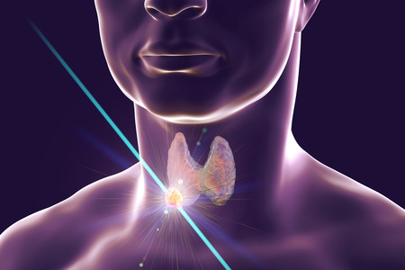Destruction of thyroid nodule by laser, 3D illustration. Conceptual image for thyroid tumor treatment