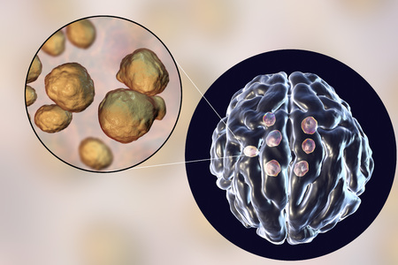 Multiple cryptococcal cysts in brain, cryptococcoma, and close-up view of pathogenic fungi Cryptococcus. 3D illustration Stock Photo