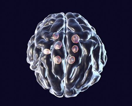 Multiple cryptococcal cysts in brain, cryptococcoma, 3D illustration Stock Photo