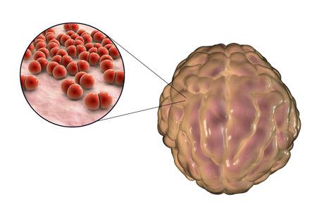 meninges: Meningitis infection caused by bacteria Streptococcus pneumoniae
