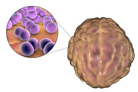 Meningitis infection caused by bacteria Neisseria meningitidis Stock Photo