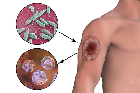 Cutaneous leishmaniasis ulcer and close-up view of Leishmania promastigotes, up, and amastigotes infected human histiocyte cells, bottom , 3D illustration