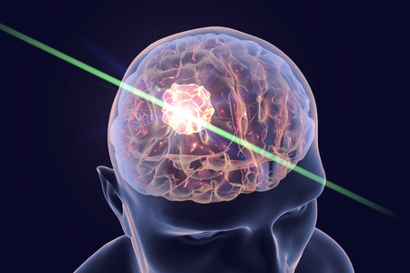 Destruction of brain tumor by laser, 3D illustration. Conceptual image for brain cancer treatment Stock Photo