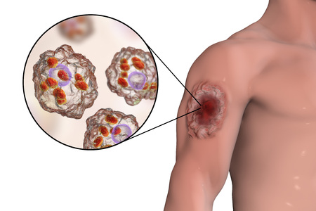 protozoan: Cutaneous leishmaniasis ulcer and close-up view of Leishmania amastigotes infected human histiocyte cells, 3D illustration