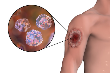 tropica: Cutaneous leishmaniasis ulcer and close-up view of Leishmania amastigotes infected human histiocyte cells, 3D illustration