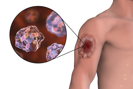 Cutaneous leishmaniasis ulcer and close-up view of Leishmania amastigotes infected human histiocyte cells, 3D illustration