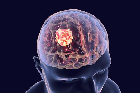 Brain cancer, 3D illustration showing presence of tumor inside brain