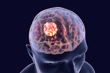 Brain cancer, 3D illustration showing presence of tumor inside brain
