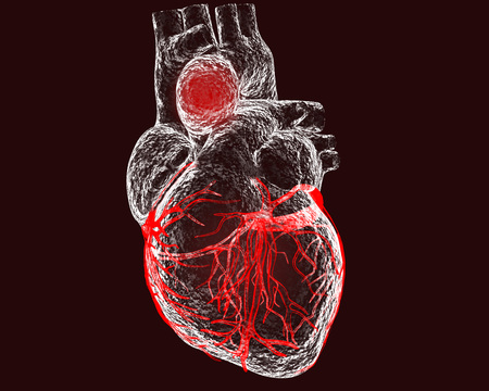 Aneurism of ascending aorta. Heart with aortic aneurism isolated on black background, 3D illustration Stock Photo