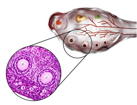 transverse: Transverse section of an ovary showing primordial, primary and secondary follicles. Light microscopy, hematoxylin and eosin stain, magnification 200x and 3D illustration Stock Photo