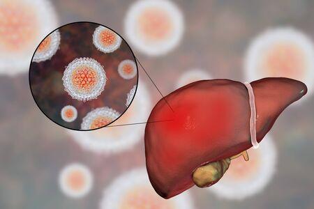 간염 C 형 간염에 감염된 간염과 C 형 간염 바이러스 HCV, 3D 일러스트 레이션의 근접 촬영보기