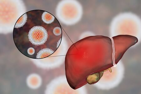 Liver with Hepatitis C infection and close-up view of Hepatitis C Virus HCV, 3D illustration