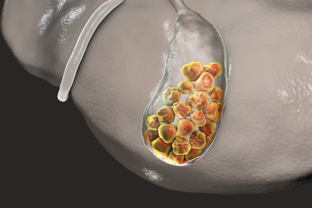 gallstones: Gallstones, 3D illustration showing bottom view of liver and gallbladder with stones