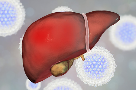 illustration infected: Liver with Hepatitis C infection surrounded by Hepatitis C Viruses HCV, 3D illustration Stock Photo