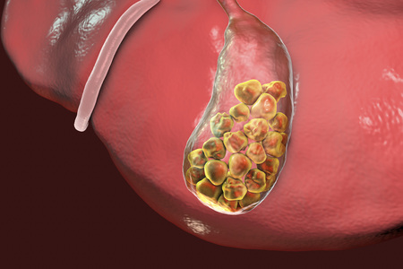 Gallstones, 3D illustration showing bottom view of liver and gallbladder with stones
