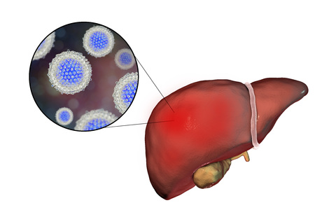 sexually infection: Liver with Hepatitis C infection and close-up view of Hepatitis C Virus HCV, 3D illustration