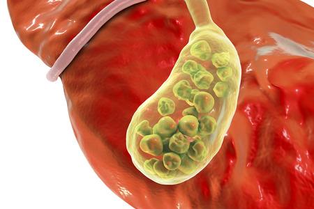 胆石、肝臓と胆嚢の石の底面を示す 3 D 図