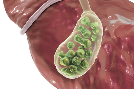 human anatomy: Gallstones, 3D illustration showing bottom view of liver and gallbladder with stones
