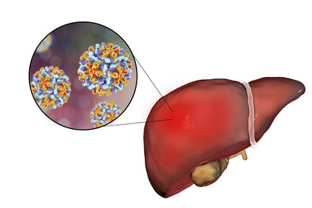 Liver with Hepatitis B infection and close-up view of Hepatitis B Virus, 3D illustration