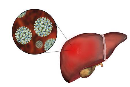 Lever met infectie Hepatitis B en close-upweergave van Virus Hepatitis B, 3D illustratie
