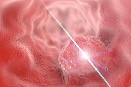 Laser treatment of esophageal cancer concept, 3D illustration