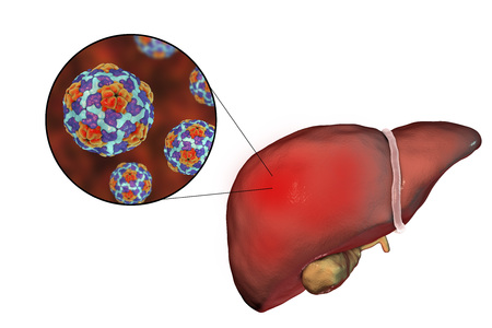 Liver with Hepatitis A infection and close-up view of Hepatitis A Virus, 3D illustration