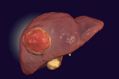 Liver cancer. 3D illustration showing presence of tumor inside liver