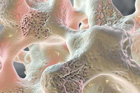 Spongy bone tissue affected by osteoporosis, 3D illustration Imagens
