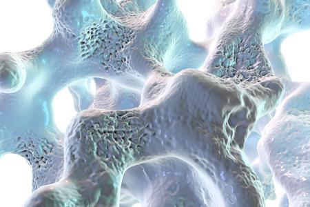 Spongy botweefsel getroffen door osteoporose, 3D-afbeelding