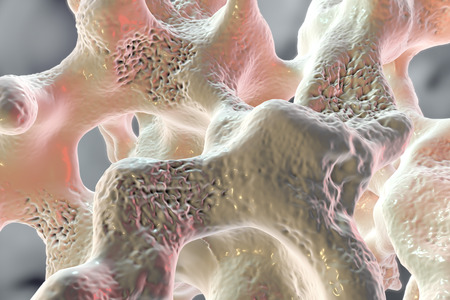 Spongy bone tissue affected by osteoporosis, 3D illustration Stock fotó