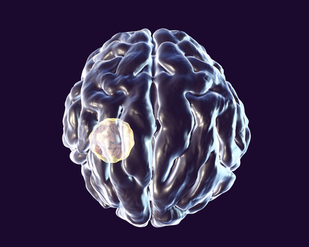 Brain abscess caused by parasitic protozoan Toxoplasma gondii, 3D illustration Stock Photo