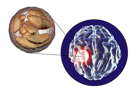 protozoan: Brain abscess caused by parasitic protozoan Toxoplasma gondii and close-up view of Toxoplasma parasites inside abscess cavity, 3D illustration Stock Photo