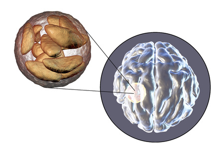 teratogenic: Brain abscess caused by parasitic protozoan Toxoplasma gondii and close-up view of Toxoplasma parasites inside abscess cavity, 3D illustration Stock Photo
