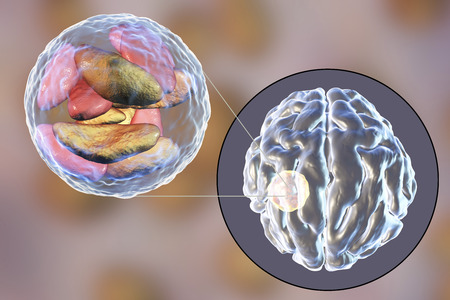 Brain abscess caused by parasitic protozoan Toxoplasma gondii and close-up view of Toxoplasma parasites inside abscess cavity, 3D illustration Stock Photo