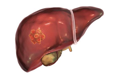 Leverkanker. 3D illustratie toont aanwezigheid van tumor in de lever