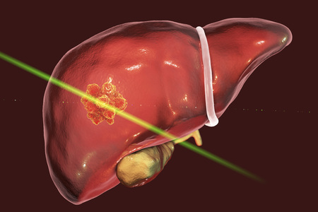 Liver cancer treatment with laser. Conceptual image. 3D illustration