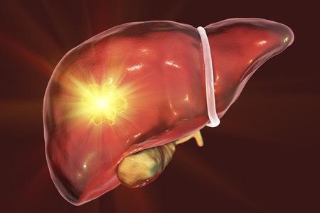 Liver cancer treatment. Conceptual image. 3D illustration