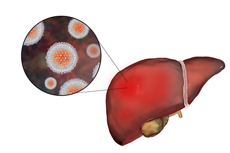 hepatitis virus: Liver with Hepatitis C infection on the stage of liver cirrhosis and close-up view of Hepatitis C Virus, HCV, 3D illustration Stock Photo