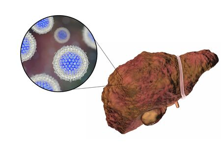 human liver: Liver with Hepatitis C infection on the stage of liver cirrhosis and close-up view of Hepatitis C Virus, HCV, 3D illustration Stock Photo