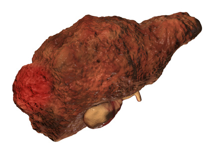 Hepatocellular carcinoma with cirrhosis isolated on white background, 3D illustration