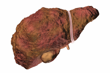 Liver cirrhosis isolated on white background, 3D illustration