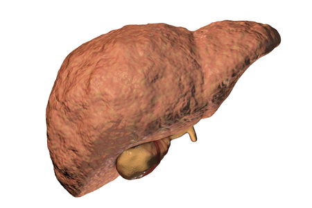 Fibrotic liver, a stage of liver pathology progression, 3D illustration Stock Photo