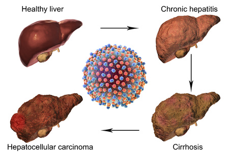 Liver disease progression in Hepatitis C virus infection, 3D illustration Stockfoto