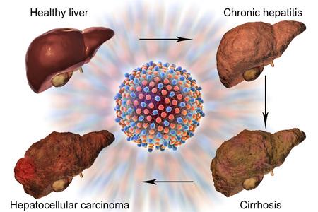 Liver disease progression in Hepatitis C virus infection, 3D illustration Imagens - 83543017
