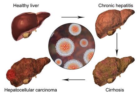 Liver disease progression in Hepatitis C virus infection, 3D illustration 版權商用圖片